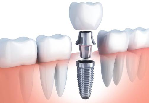 Dental Implant Nursing